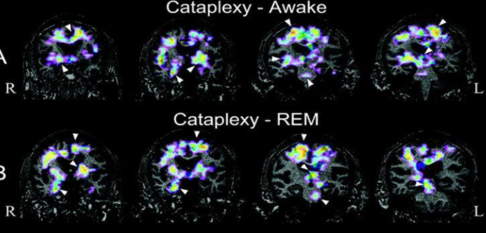 beyin-fonksiyonlarini-guclendiren-ilac