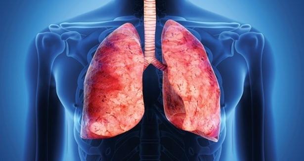 hasta akcigerler icin yeni bir ilac teslim teknigi - Hasta akciğerler için yeni bir ilaç teslim tekniği