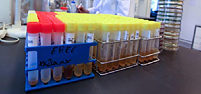 yerli ilac icin dev laboratuvar kuruluyor - Yerli ilaç için dev laboratuvar kuruluyor
