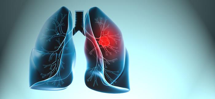 akciger-kanseri-tedavisinde-akilli-ilac-donemi