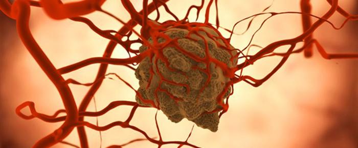 Kanserde Mutasyona Göre İlaç Verilecek
