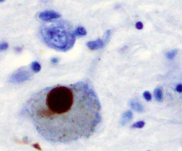 Parkinson Hastalığının Daha İyi Tedavisi İçin Yeni Enzim Çözümleri
