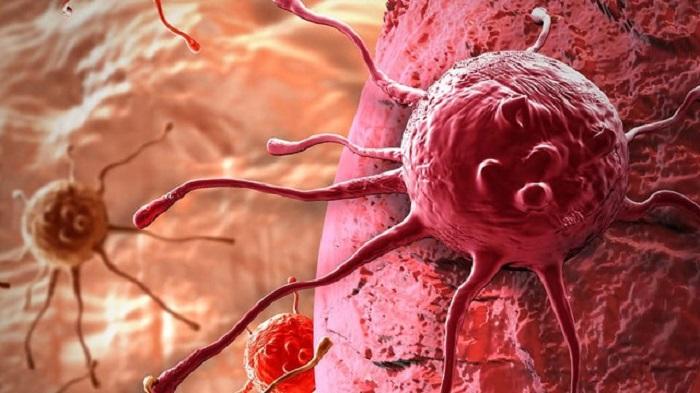 Yeni Kanser İlacı, Kemoterapi İle Birlikte Verildiğinde Daha Etkilidir!